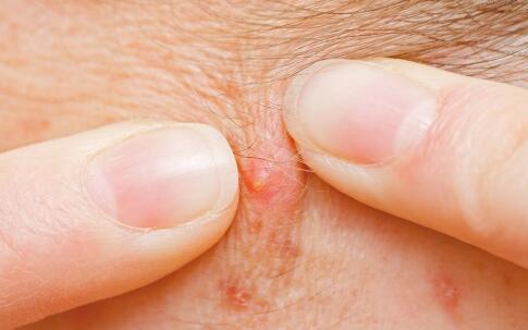 毛囊炎的最佳治疗方法 毛囊炎怎么治疗