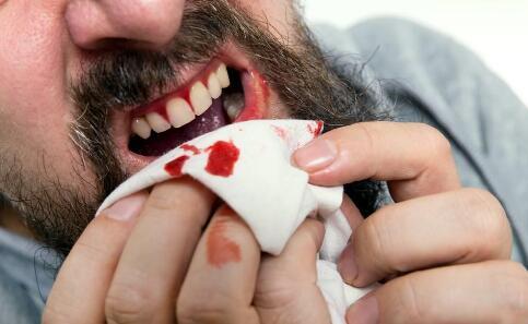 口腔溃疡怎么快速好 口腔溃疡严重怎么办