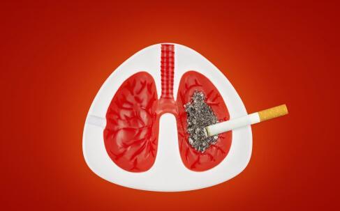 支气管肺癌
