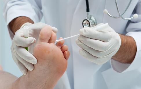 脚气会传染到手上吗 脚气传染到手上怎么办