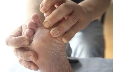 脚气是什么原因引起的 长脚气是什么原因