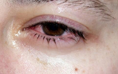 干眼病用眼药水有没有用 还有别的办法么