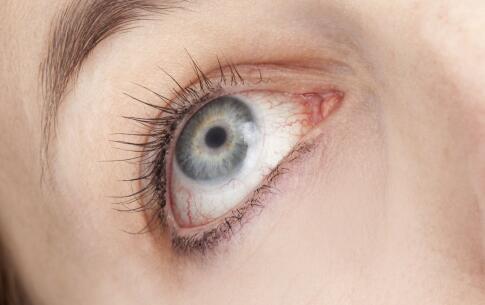 把电脑屏幕垫高可以预防颈椎病 但是干眼症找上门