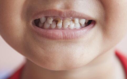 矫正牙齿的危害 牙齿矫正的危害