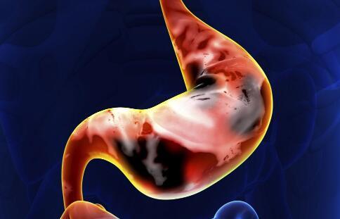 胃肠炎的症状有哪些 上吐下泻是有的