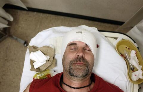 颅脑外伤的护理诊断 颅脑外伤鉴别诊断