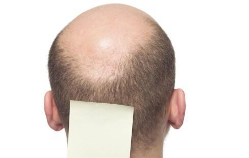 脑外伤的后遗症 颅脑损伤的后遗症