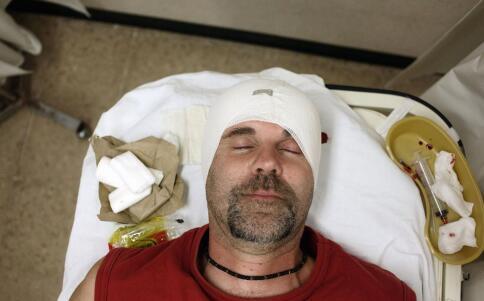 眼睛外伤充血怎么办 眼睛外伤出血如何护理