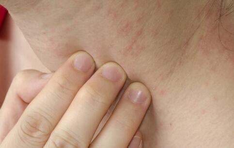 荨麻疹的有效治疗方法 寻麻疹怎么治疗