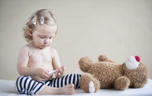 水痘的症状和治疗 治疗水痘最快方法