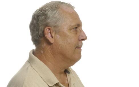 白癫风是什么病 白癫风的诊断与治疗