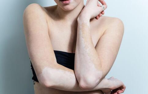 白癫风是怎样引起的 白癫风的发病原因