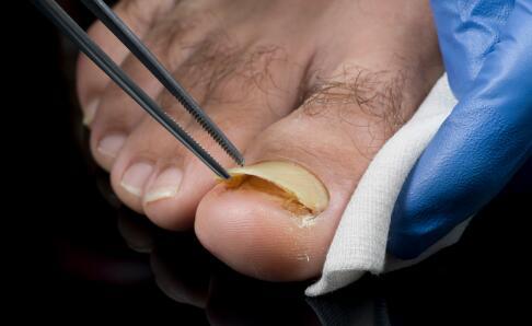 一个传染俩的灰指甲有多可恶