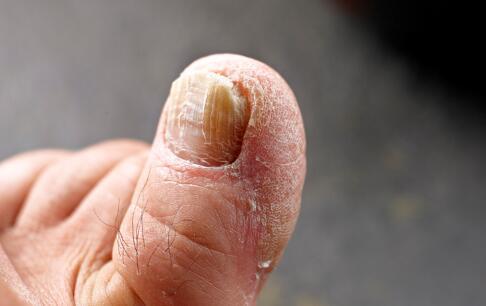 灰指甲的初期症状 怎么确定是不是灰指甲