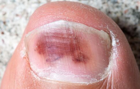 灰指甲的治疗方法 如何治疗灰指甲