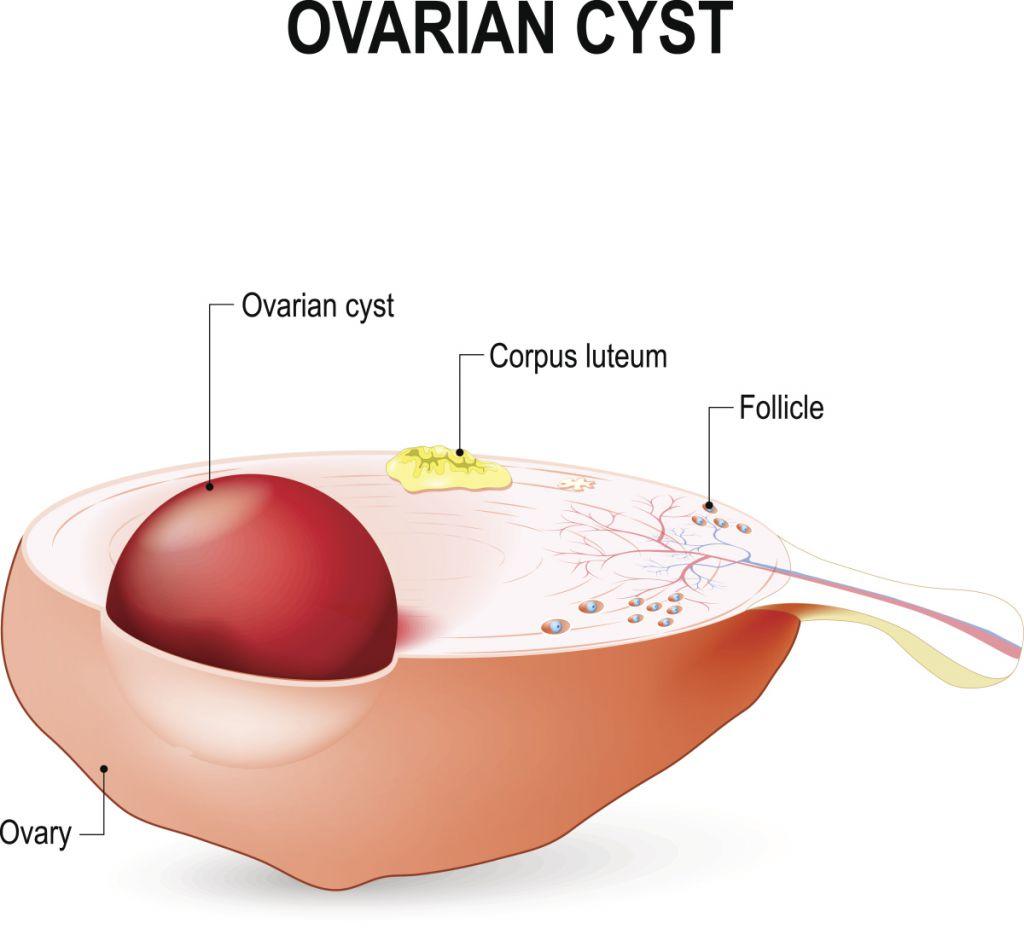 卵巢囊肿是怎么来的 如何预防