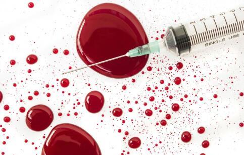 艾滋病的传播途径 艾滋病传播途径是哪几种