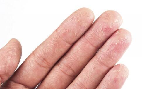 血小板减少性紫癜能治好吗 血小板减少性紫癜怎么治疗