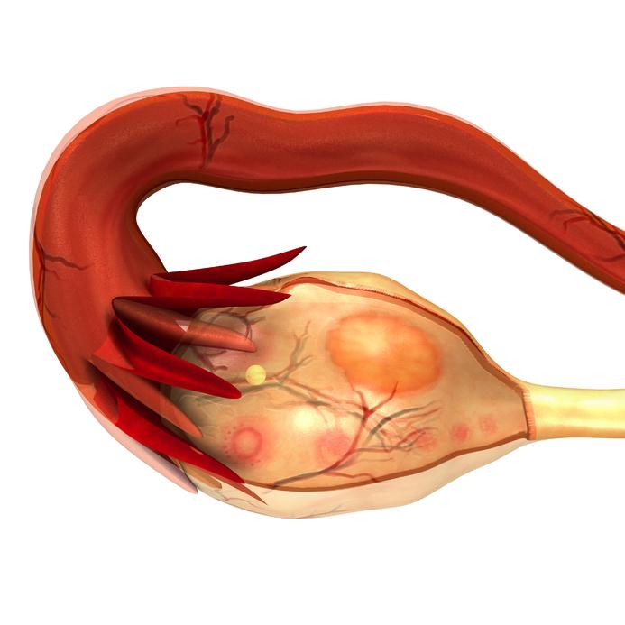 左侧卵巢囊肿严重吗 左侧卵巢囊肿怎么治疗