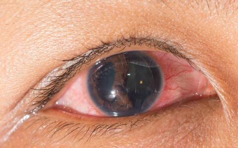 眼睛的保护伞结膜发生炎症怎么办