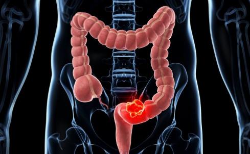 肠梗堵的症状及治疗 肠梗阻的五项典型特征