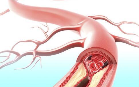 下肢动脉硬化闭塞症
