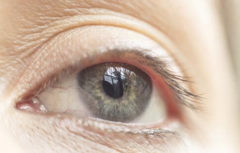 麦粒肿怎么消除 眼睛麦粒肿怎么消除