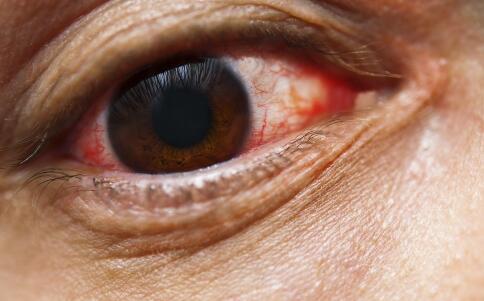 干眼症是什么原因引起的 干眼症的原因