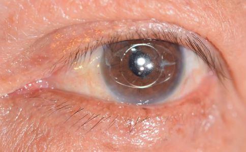 眼底黄斑病能治好吗 必需注重早期预防