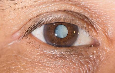 老年性白内障