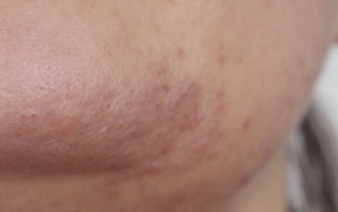 哪些淋巴结肿大最危险 淋巴结肿大严重吗